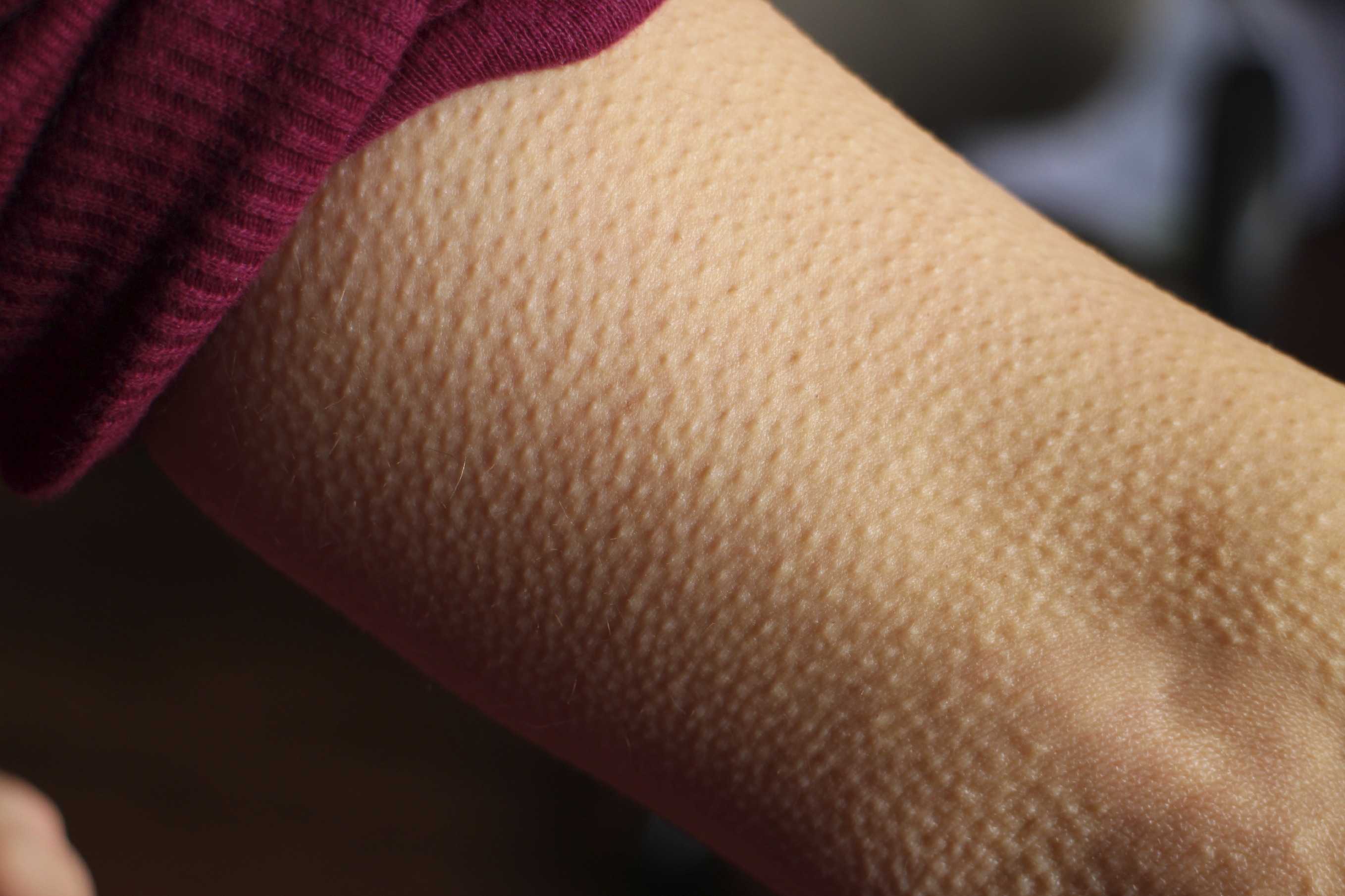 5 Steps to a Goosebumps-Worthy Presentation